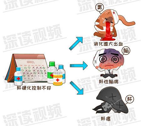 肝硬化-1-7.jpg