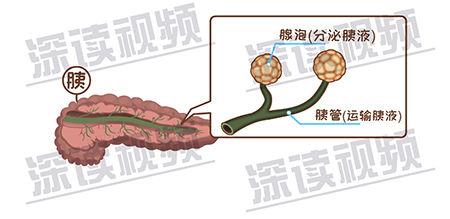 急性胰腺炎-2-4.jpg