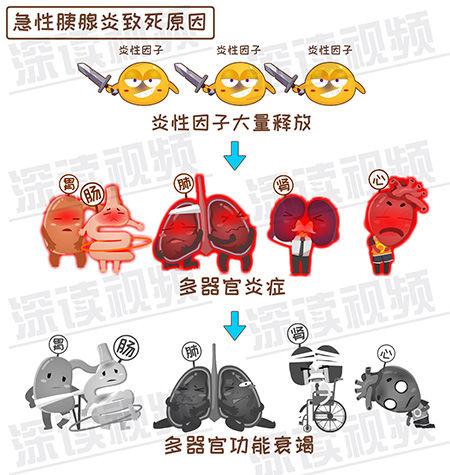 急性胰腺炎-2-8.jpg