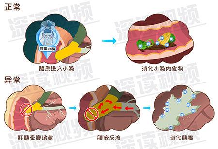 急性胰腺炎-3-4.jpg